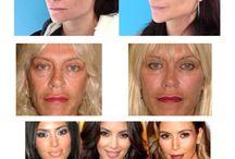 FACE RESTORATION / FaceRestoration: è una tecnica ideata per ridare i giusti volumi al viso. Il viso della donna donna più è triangolare più è sensuale. Si esegue con una microcannula in 10 minuti dividendo lo zigomo in 4 parti.