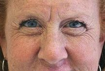 Deep Forehead Lines Can Be Easily Erased With Facial Exercises