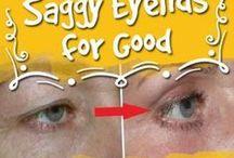 Sagging  eyelids.