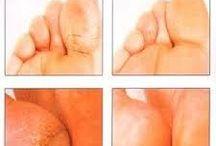 Foot remedies