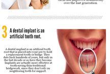Dental Implants / All About Dental Implants!