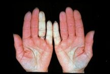 Raynauds Syndrome Information
