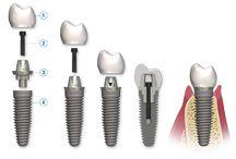 Οδοντικά Εμφυτεύματα  | implantsforall.gr/el/ / Οδοντικά Εμφυτεύματα από την Implants For All. Μάθετε περισσότερα στο https://implantsforall.gr/el/yphresiess