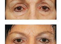 Hollow Upper Eyes / Dr. Michael Law's Before and After Photos of Upper Eyelid Procedures.