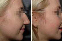 """Korekcja nosa / W tym miejscu znajdziesz zdjęcia """"Przed i Po"""" korekcji nosa."""