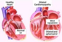 Cardiomyopathy Treatment India / Cardiomyopathy is a situation in which your cardiac muscle becomes infected and enlarged. Find low cost Cardiomyopathy Treatment for mediacl tourist India.
