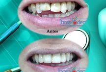 Casos Clinicos / Imagenes de antes y despues del Tratamiento Dental