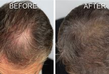 Scalp Shading By MicroArt Semi Permanent Makeup / Scalp Shading is a great solution for men and women with thinning hair. It camouflages the scalp to create the illusion of thicker hair.