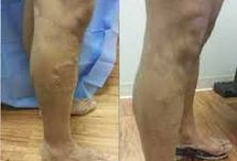 Chicago varicose vein therapy