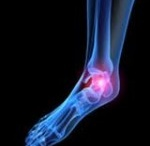 Regenerative Medicine Foot and Ankle / Get the latest advanced in foot and ankle pain relief with regenerative medicine.  Dr. Katz is one of the few doctors that offers these advanced treatments.