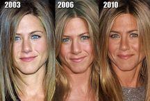 Lézeres arcfiatalítás és pigmentfolt eltávolítás - celebek / Műtét nélküli arckezelések alkalmasak arra, hogy a finom ráncokat eltüntesse, illetve a bőr állagát megfiatalítsa. Arcfiatalító hatása van egyébként az öregségi, ill. napfoltok eltávolításának is, így a bőr egyenletes színű és élénk lesz. Némely lézeres kezelés erre is alkalmas, pl. az Aestheticában használatos M22 lézer.