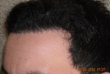 Hair transplant / Photos from hair transplants. Read more at