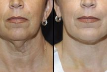 Facial Massaging Exercises For A Younger Looking Face / Look More Youthful Now Via Facial Strengthening Aerobics