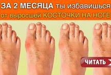кость на ноге