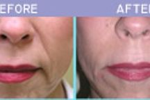 Best Facial filler Treatment in Des plaines / Facial fillers or Derma fillers help to lessen the face lines, restore volume and provide fullness to the face. get more details please call  630-974-1400 now.