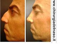 Rinoplastica Estetica / La rinoplastia estetica è la procedura chirurgica che consente di rimodellare il profilo nasale e la punta del naso per ottenere un naso più armonico e coerente con i lineamenti. / by Dr. Enrico Dondè RINOPLASTICA RINOFILLER