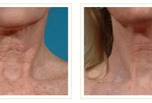 Laser Resurfacing: Before & After / Before & After : Laser Resurfacing: http://drjayburns.com/before-and-after/laser-resurfacing/