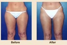 Body Procedures / Liposuction, abdominoplasty, tattoo removal, before & after photos, procedure information