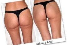 Truth About Cellulite / Cellulite (also known as adiposis edematosa, dermopanniculosis deformans, status protrusus cutis, gynoid lipodystrophy, orange peel syndrome and cottage cheese skin) is the herniation of subcutaneous fat within fibrous connective tissue that manifests topographically as skin dimpling and nodularity, often on the pelvic region (specifically the buttocks), lower limbs, and abdomen.Cellulite is thought to occur in 80-90% of post-adolescent females.