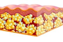 Tratamientos para la celulitis