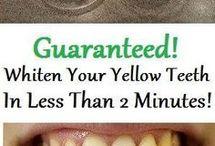 Whiten Teeth in Ten Minutes