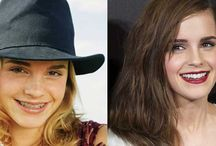 Famous Brace Faces / Famous people that have worn braces, Invisalign, or that have undergone other orthodontic treatment.