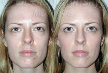 Blepharoplasty Before & After  / Blepharoplasty refers to Eyelid Surgery and is designed to remove excess fat, with skin and muscle from the upper and lower eyelids. Blepharoplasty eliminates puffiness and bags under the eyes that make you look worn and tired. Though blepharoplasty in New York is often performed as a single procedure, Dr. Slupchynskyj may also recommend a Brow Lift, Facelift, or Skin Resurfacing to achieve the best results.