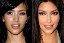 Kardashian plastic surgery