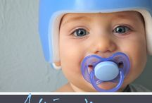 Infant Cranial Helmets / Cranial Helmets for Infants with plagiocephaly and/or torticollis.  Also known as DOC Bands to correct flat spots on baby heads.