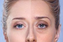 Eliminar las ojeras y bolsas de los ojos
