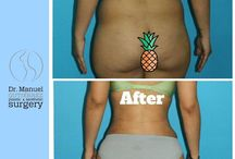 Body Before & After