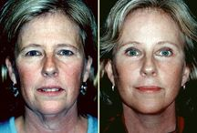 Face Aerobics Exercises For Youthful Looks / How To Use Facial Workout Therapies To Claw Back Your Youth And Remedy Face Furrows And Limp Skin