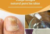 remedio hongos uñas