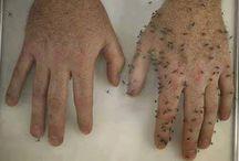 antimuggen spray