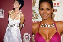 Halle Berry Breast Implant