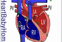 CHD Visuals - Heart Defects / Illustrations of various Congenital Heart Defects anatomy mainly by HeartBabyHome.com artist