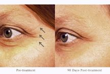 Pelleve / Pelleve is a skin tightening treatment at our cosmetic clinic. using radio frequency