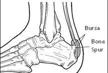 Haglunds deformity