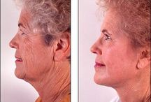 Face Toning Regimens For Cheek And Face Tightening / Praise To Acupressure: Essentials Of A Natural Facelift