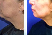 Real Ultherapy before & afters / Real Ultherapy clients & their results