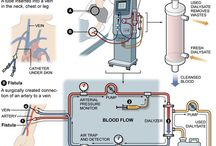 All about Kidney and Dialysis