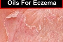 Eczema Treatments