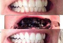 santé bouche