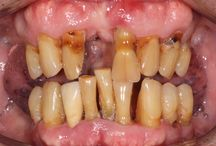 How dentures can transform a smile / A board dedicated to showing how dentures, inconjunction with other treatments can transform a smile.