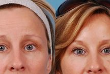 Botox / BOTOX® and Dysport are popular because they are FDA approved non-surgical methods of reducing or eliminating unwanted lines and wrinkles on the face. BOTOX® is distributed by Allergan and Dysport is distributed by Medicis.