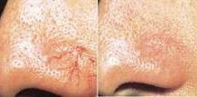 Skin Photorejuvenation / IPL