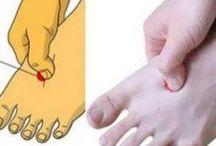 Kéz láb