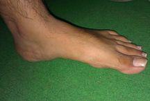Club Foot Treatment