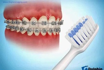 Caring for your Braces