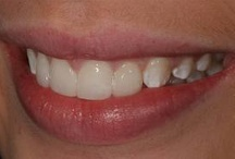 Composite Veneers / At Smile Concepts there are various options to improve your smile and one of the techniques includes the use of porcelain veneers. There are newer ways of doing veneers called Lumineers.